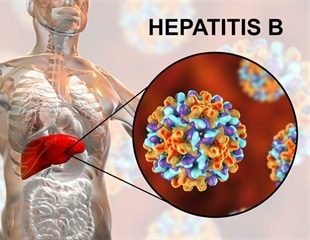 90% of hepatitis cases, 65% hepatitis deaths preventable by 2030