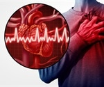 Detection of atrial fibrillation after stroke made easy with electrocardiomatrix technology