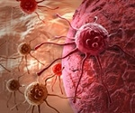 New protein target for deadly ovarian cancer