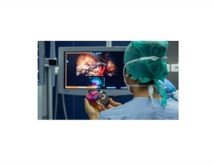 Bordeaux University Hospital uses 3D printing to improve kidney tumor removal surgery