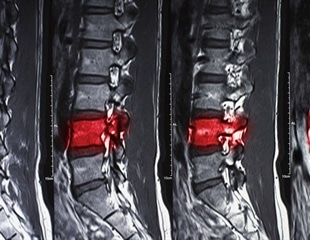 An injection of nanoparticles for spinal cord injuries