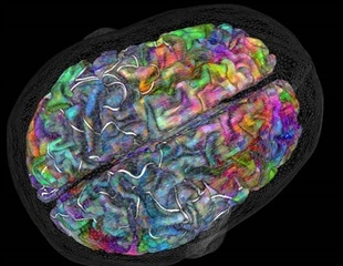 Brain maps show activity related to meaning and not mode of learning