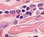 New study provides a better understanding of Merkel cell carcinoma