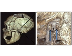 'Swimmer's ear' found to be common among Neanderthals