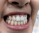 Fluoride varnish: is there any benefit?