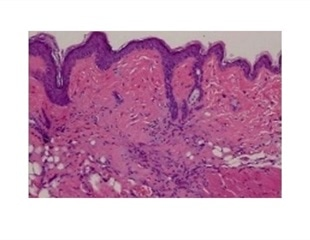 Failed cancer drug could potentially be used to treat fibrotic diseases and scleroderma
