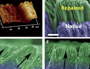 New advance could lead to regrowth of decayed enamel