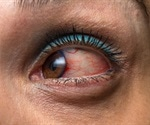 New study to evaluate drug combination treatment for uveitis