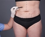 Body contouring surgery is affordable to patients with insurance and income, says researcher