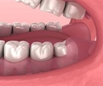 Research findings have major implications for public dental health resources, costs for patients