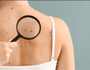 A new method to distinguish benign and cancerous skin moles