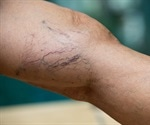 What are Varicose Veins and Can They be Treated?