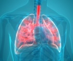 Identifying Protein Biomarkers for COPD from Exhaled Air Condensate