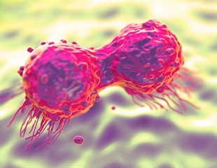 Genetic testing may help patients with metastatic breast cancer