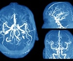Differences Between an Aneurysm and Migraine