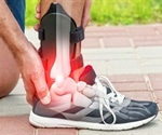 Taking Anabolic Steroids After a Sport Injury