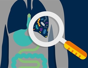 Lung microbes could help predict outcomes in the seriously ill