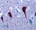 The Role of Tau Aggregation and Alzheimer's Disease