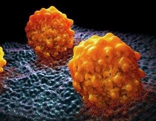 Halting metastasis by preventing cancer cells from using fat