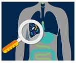 Lung microbiome of critically ill patients is predictive of clinical outcomes