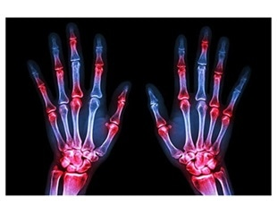 Arginine depletion could form the basis for potential rheumatoid arthritis therapies