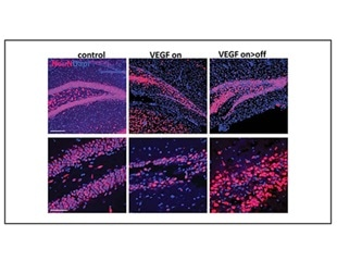 Research suggests a new role for neurogenesis