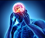What Foods Can Cause Migraines?