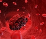 Blood clots speed up aneurysm growth and increase rupture risk, warn researchers