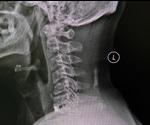 Treatment for Cervical Spondylosis