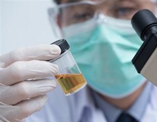 Aging of urine fertilizer prevents transfer of antibiotic resistance