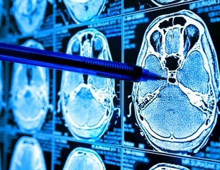 New AI tool predicts disease progression and evolution in neurodegenerative disorders