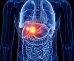 Immune system contribution to tumor heterogeneity may influence liver cancer growth