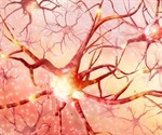 New genetic screen for Huntington's disease