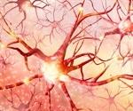 New genetic screen for Huntington's disease