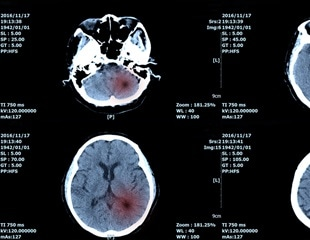 Novel artificial intelligence algorithm helps detect brain tumor