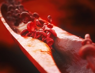 Turning stink into therapy for atherosclerosis
