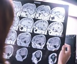 Dementia patients being admitted to hospital for emergencies up by 35 percent