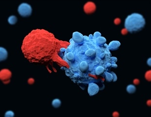 Lab tests reveal that newly discovered T-cell can kill various types of cancer