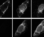 How SARS-CoV-2's spike protein highjacks the host cell trafficking machinery