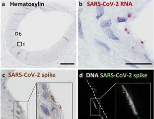 SARS-CoV-2 infection of carotid arteries may explain vascular involvement in COVID-19