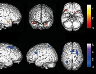Brain metabolic changes associated with loss of smell in COVID-19