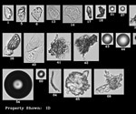 Flow Imaging Microscopy Reveals Particles Missed by DLS and NTA