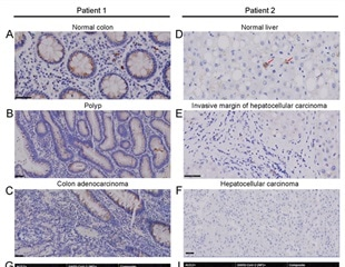 SARS-CoV-2 viral antigens found in non-pulmonary tissues in recovering patients