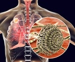 COVID-19-associated pulmonary aspergillosis caused by aspergillus fumigatus