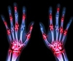 Rheumatoid arthritis may increase risk of dying from COVID-19