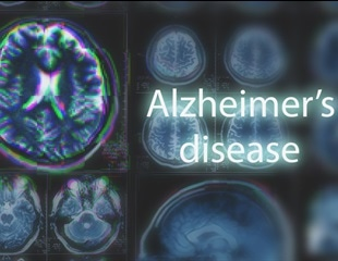 A new potential therapy for Alzheimer's disease
