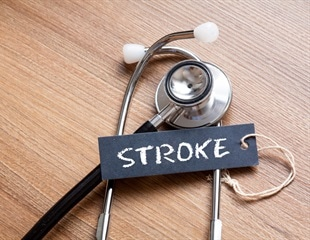 Study finds 10 metabolites associated with risk of stroke