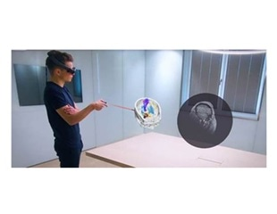 UK cancer patients use Brainlab Mixed Reality Viewer to visualize, understand their treatment