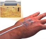 "Scientists develop ""smart"" remote-control bandage for chronic wounds"