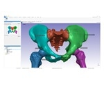 Synopsys introduces automated segmentation tool for hips and knees